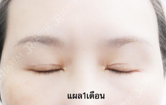 ตา2ชั้น