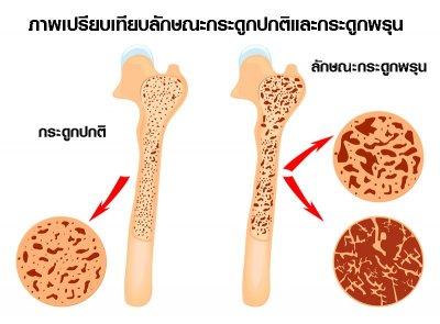 กินอย่างไรเพื่อป้องกันโรคกระดูกพรุน