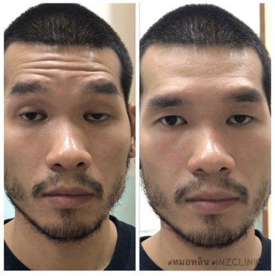 """มารู้จักกับ """"โรค MG"""" ภาวะกล้ามเนื้อตาอ่อนแรงที่ไม่ต้องผ่าตัด"""
