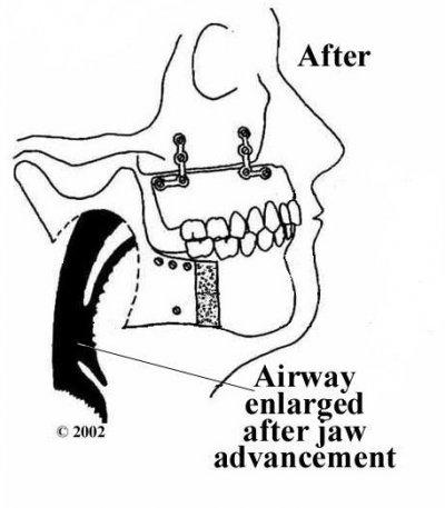 การผ่าตัดเลื่อนกระดูกขากรรไกรบนและล่างมาทางด้านหน้า